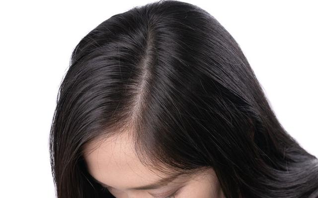 Effective Way of Battling With Hair Fall