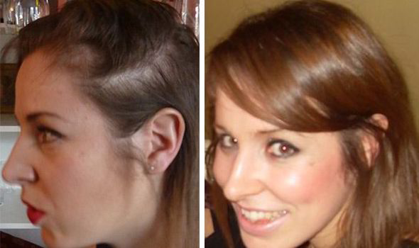 Photo of Best Way To Restore Lost Hair Naturally