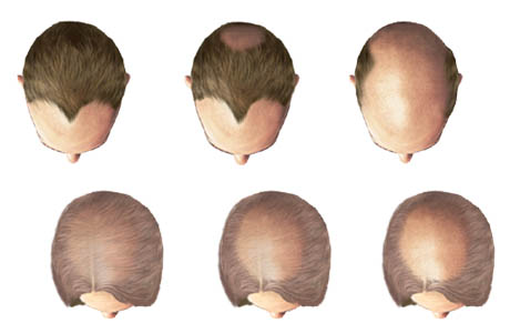 Photo of Discovering The Different Types Of Hair Loss