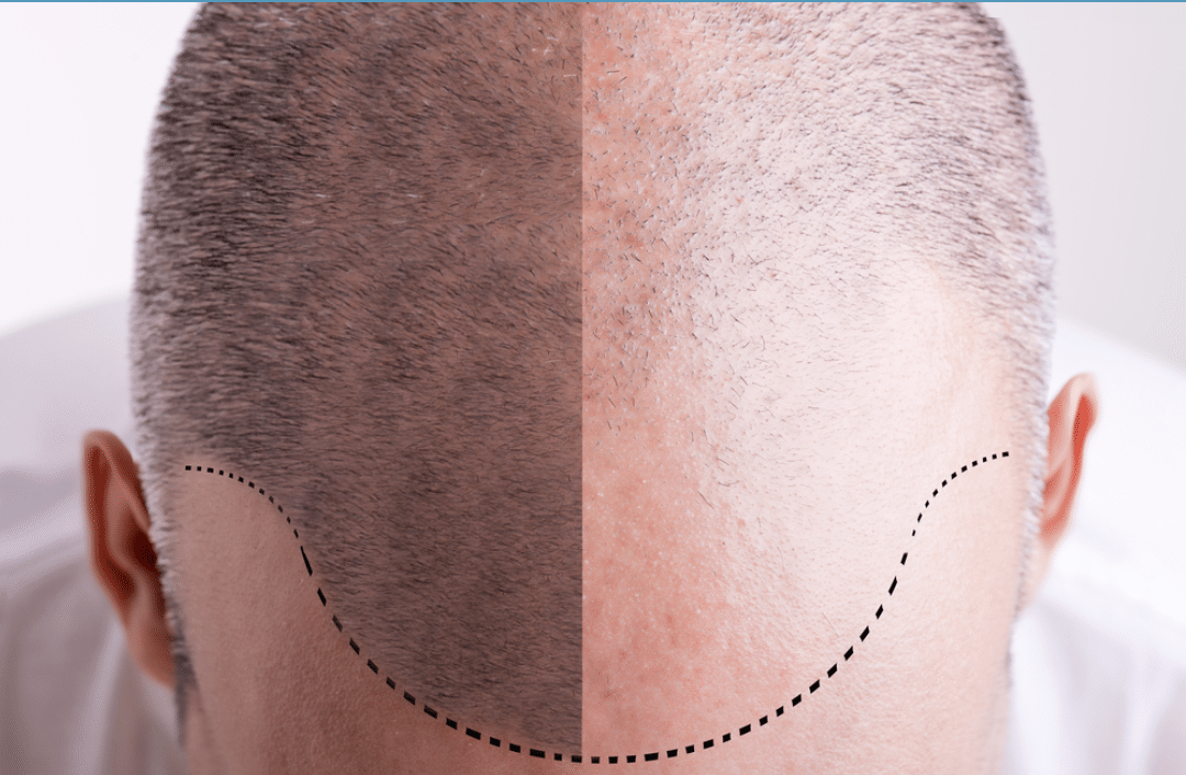 Hair Restoration Practices